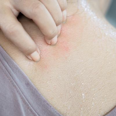 mosquito bite sweating